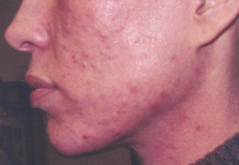 Acne scarring treatment before 122194