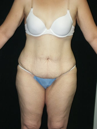 Body Lift and Breast Implans before 379786