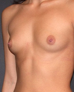 Breast Augmentation before 284114