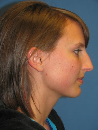 Rhinoplasty before 223696