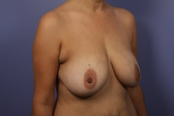 Breast Augmentation before 467216