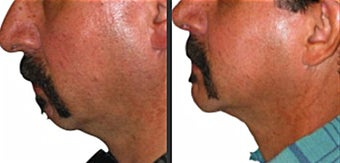 Chin Augmentation before 246965
