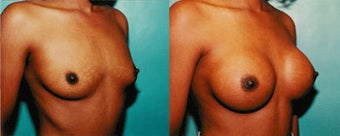 Breast Implants before 192130