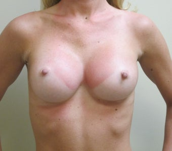 Breast Augmentation after 598642