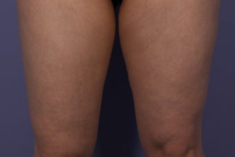 CoolSculpting Inner Thighs before 429659