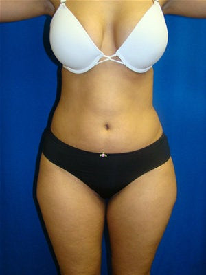 Liposuction before 89471