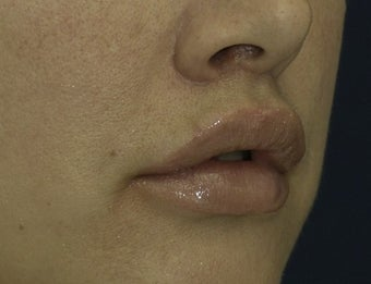 Lip Lift after 615879