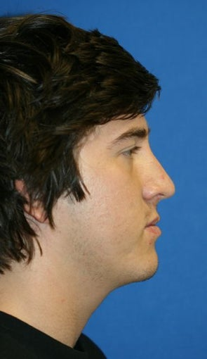 Rhinoplasty after 223240