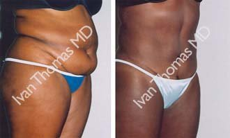 Tummy Tuck before 242541