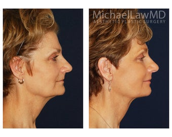 Facial Rejuvenation - Fat Transfer 395457
