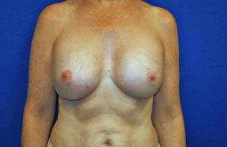 Breast Implants after 241838