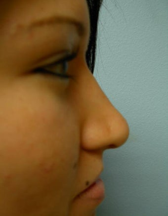 Rhinoplasty after 355875