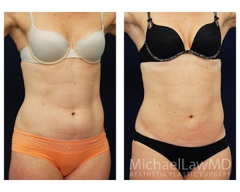 Liposuction after 495040