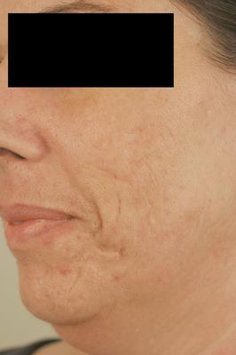 Laser Acne Scar Removal after 82939