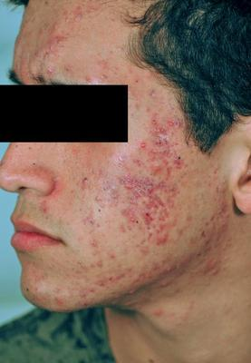 Laser Acne and Acne Scar Treatment before 82968