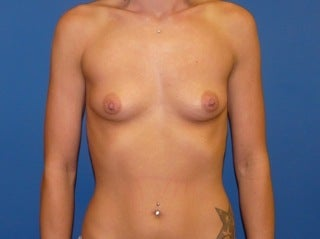 Breast Augmentation before 240251