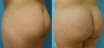 Buttock Enhancement before 110105