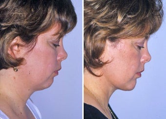 Liposuction of neck and chin augmentation after 332849