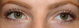 Upper Eyelid Blepharoplasty after 356800
