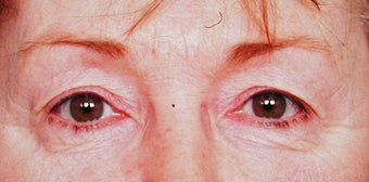 Blepharoplasty before 287437