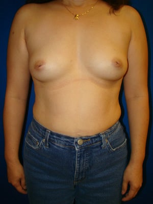 Breast Augmentation Surgery - Nipple Reduction before 161343
