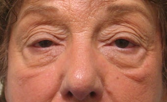 Upper eyelid ptosis repair and lower eyelid blepharoplasty and midface lift