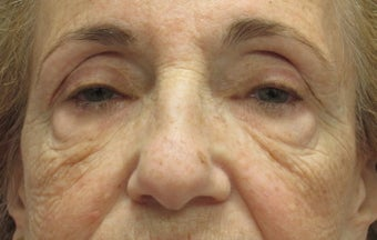 Browlift, ptosis repair, lower bleph and cheek lift before 433555