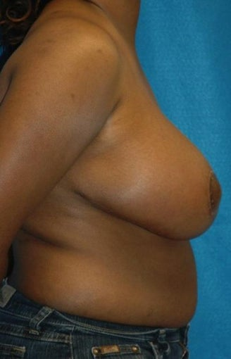 FEMMA-S Breast reduction and lift after 393389