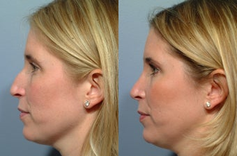 Rhinoplasty before 212555
