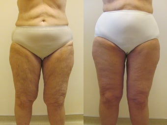 Circumferential thigh lift before 220775