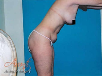 Vaser Lipo - Abdomen before 376424
