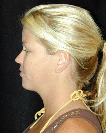 Liposuction of the Chin after 214684