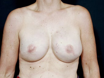 48 Year Old for Breast Reconstruction after 643205