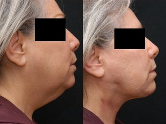 SmartLipo/MPX Neck and Jowls before 367863