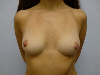 Breast Augmentation with new Ultra High Profile Silicone Implants 500cc before 636433
