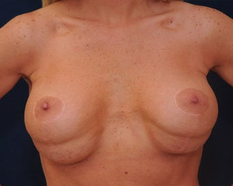 breast implant revision before 334113