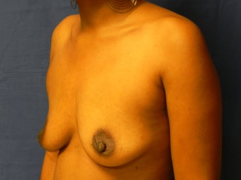 Breast Augmentation  before 364626