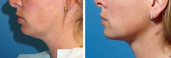 Chin Liposuction before 640748