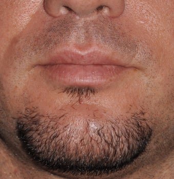 Chin Augmentation after 521701