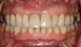 Anterior dental implant after 316683
