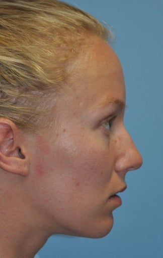 Rhinoplasty before 373784