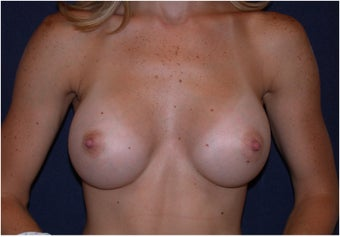 Breast Augmentation after 178943
