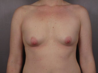 Breast Lift / Breast Augmentation   before 291063