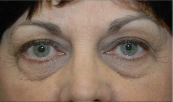 Lower blepharoplasty and fat grafting before 524914
