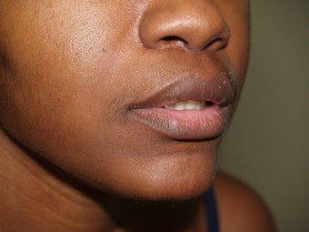 Upper Lip Lift after 405416