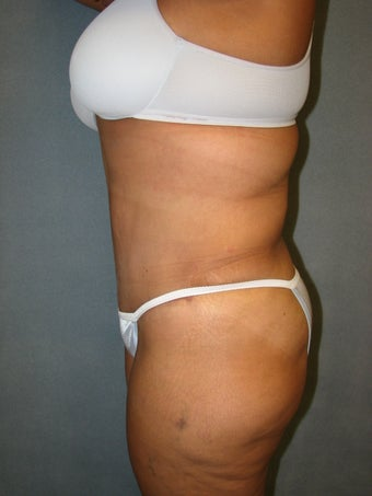 Tummy Tuck and Liposuction after 127657