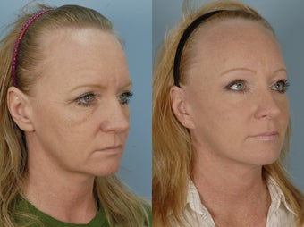 Endoscopic Browlift and Laser Resurfacing to lower eyelids