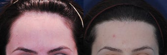 Forehead Reduction Surgery or Hairline Lowering Surgery after 323759