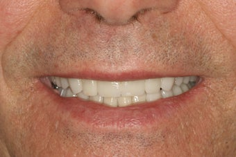 Full Smile Makeover after 112063