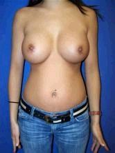 Breast Augmentation after 356554